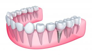 The Best Dental Implant service in Belmont, Charlotte, Mt Island, Rockwell and Stanley, North Carolina