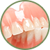 Oak Ridge Dental Arts Dentures