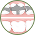 Oak Ridge Dental Arts Dental Fillings